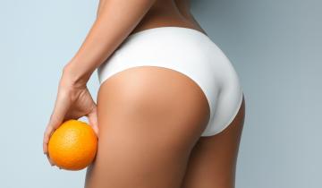 Orangenhaut – Cellulite steht nur Zitrusfrüchten